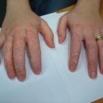 Example of allergic contact dermatitis