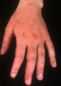 Example or irritant contact dermatitis